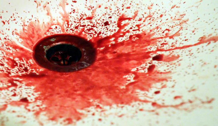 Policie vyšetřuje krvavý silvestrovský incident, žena ukousla při hádce partnerovi část nosu