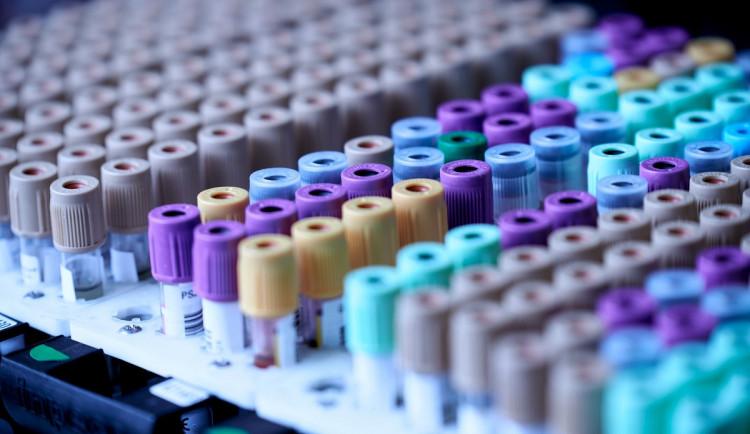 Speciální sanitka zdarma a anonymně otestuje zájemce na HIV a syfilis